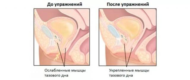 a pénisz letargiája mi van, ha a pénisz kapillárisai megrepednek