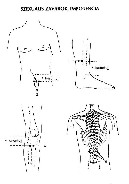 akupresszúra és erekció