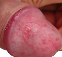 a pénisz tövének görbülete)