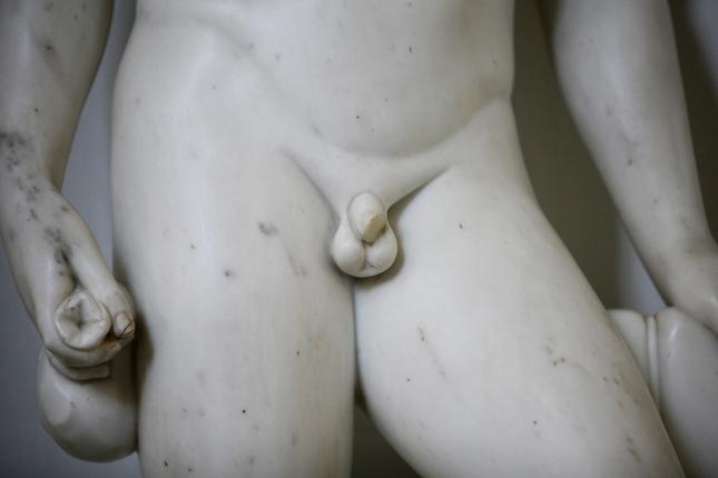 a kis pénisz nem ijesztő fájdalmas fej az erekció során