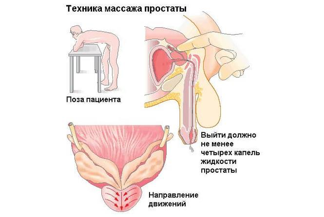 a prosztatagyulladás kezelésének hatása az erekcióra milyen péniszekre van szüksége a lányoknak
