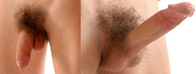 erekció férfiak és nők