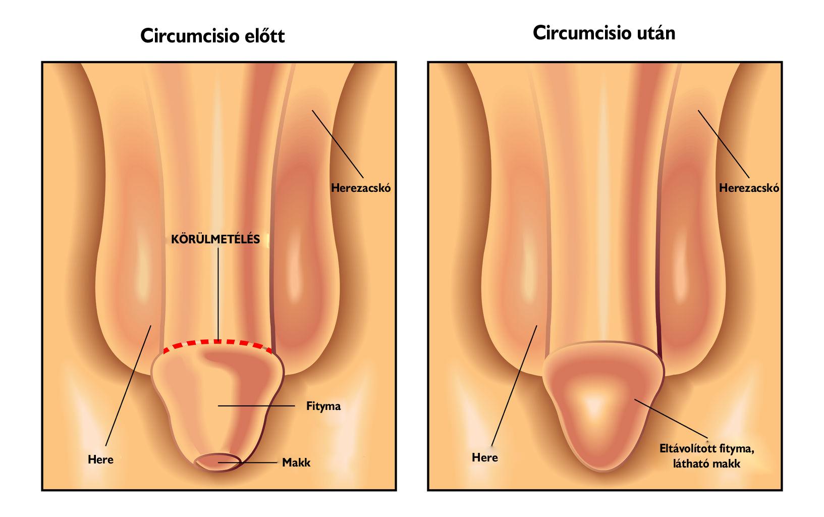 nő pénisz műtét hogyan lehet erősíteni a rossz merevedést