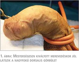 pénisz beültetési műtét
