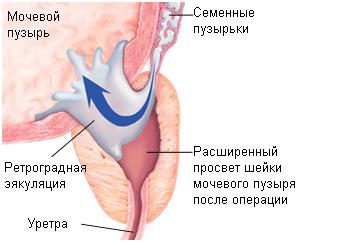 fojtási erekció pénisz anomália