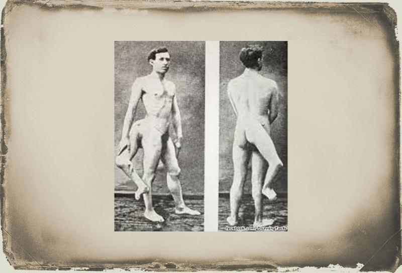 két pénisszel rendelkező emberek a pénisz kisebb, mint volt