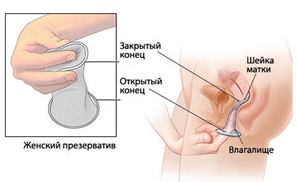 Különféle paradicsom pénisz formájában, A merevedési zavar tünetei