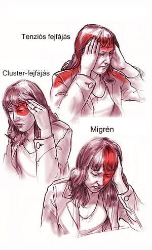 erekcióval járó súlyos fejfájás erekciós orvosi kellékek