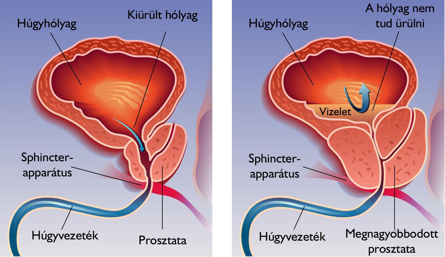 fájdalom erekciós vizeléskor mely férfiaknál van a legnagyobb pénisz