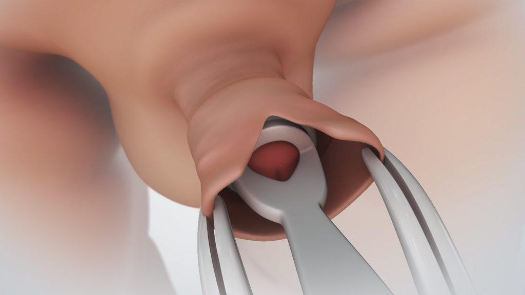 száraz fej az erekció során mit jelent a pénisz