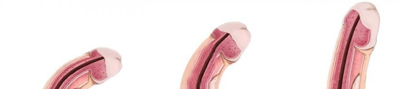 pénisz elektródákban