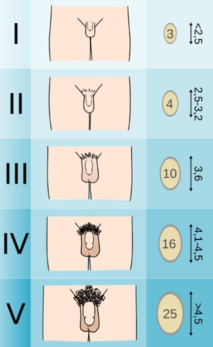 pénisz típusok